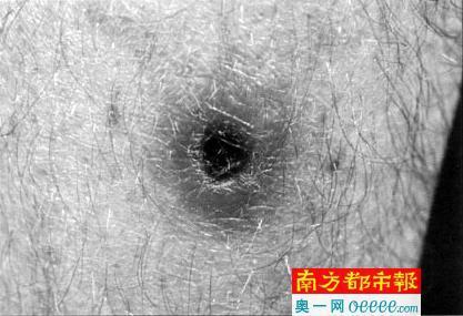 恙螨幼虫叮咬后在皮肤上形成焦痂。