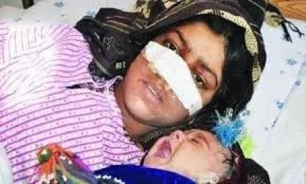 ▲ 在阿富汗,被丈夫割掉鼻子的女性不计其数 /图源:网络