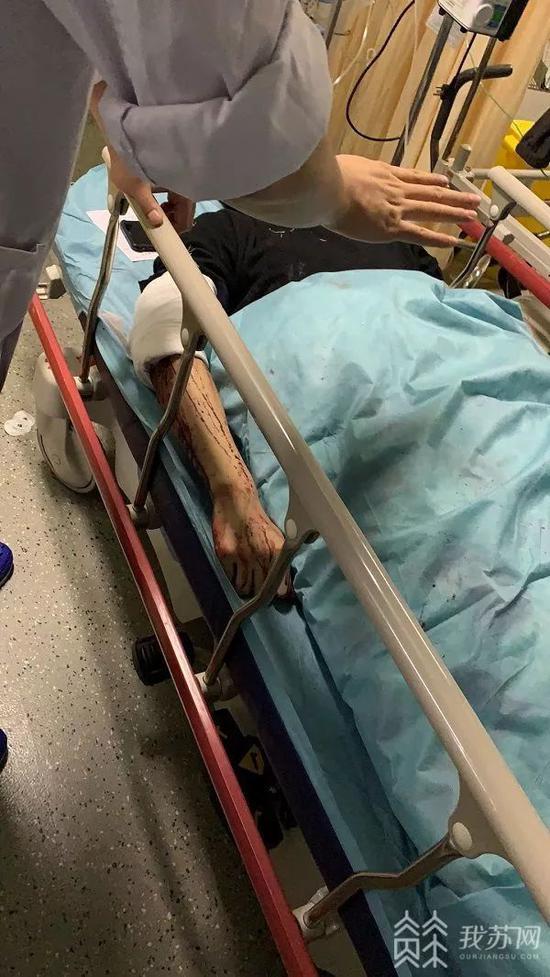 金利国际游戏 - 深圳一名交警与变道车相撞后又与另一车碰撞致颈部受伤