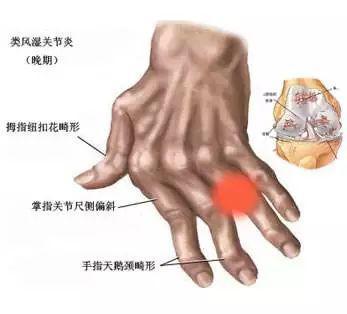 类风湿关节炎影响的仅仅是关节吗?