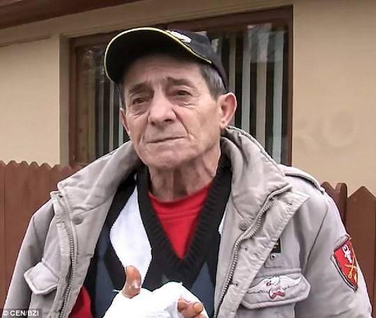 手臂受伤的66岁男子