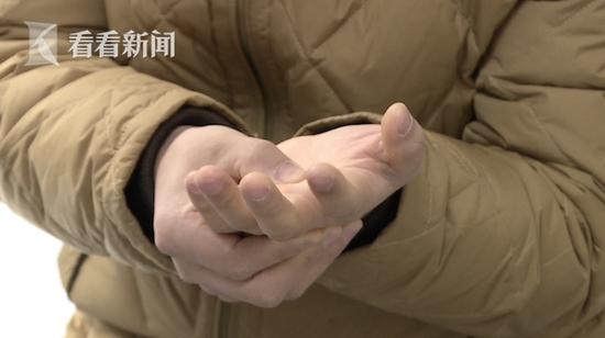男子沉迷手游致手指僵硬_医生:严重可致终生障碍