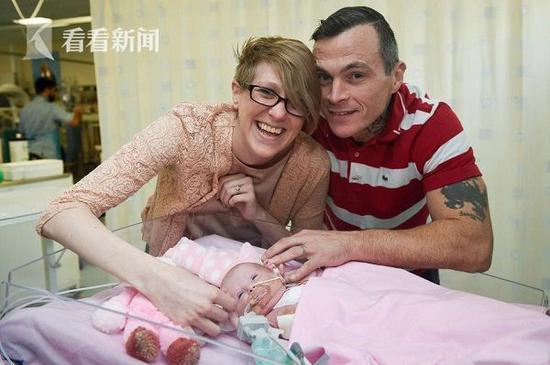 女婴心脏长在体外