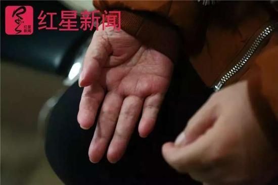 ▲方志英患有脑梗,现在右手不能动。图片来源红星新闻