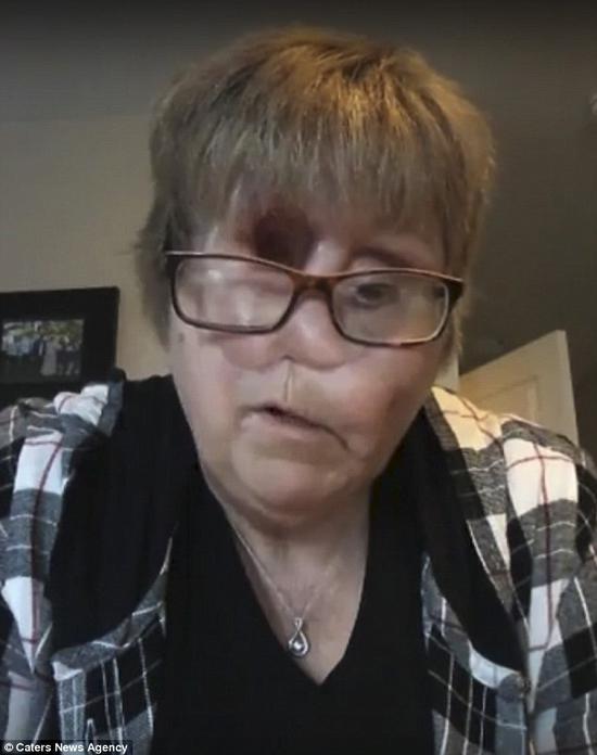 加拿大女子患眼癌术后失去右眼鼻子靠一个孔