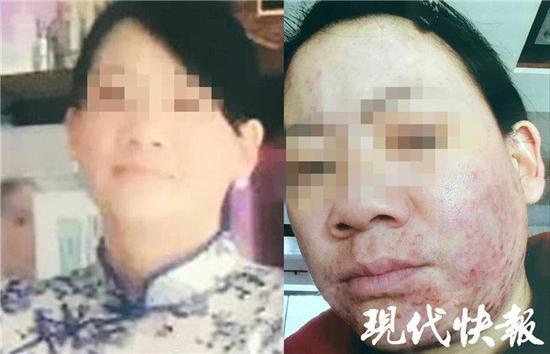 女子5个月连做57次美容 整张脸被毁惨不忍睹(图)秦国安新浪博客