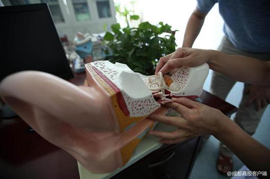 ▲7月25日,成都医学院第一隶属医院,罗先生正住院治疗