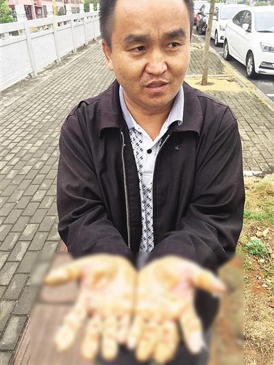 李先生的双手脱皮严重。 海南特区报 图