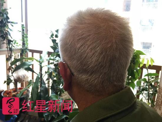 ▲银希培自称这两年压力很大,头发全白了。