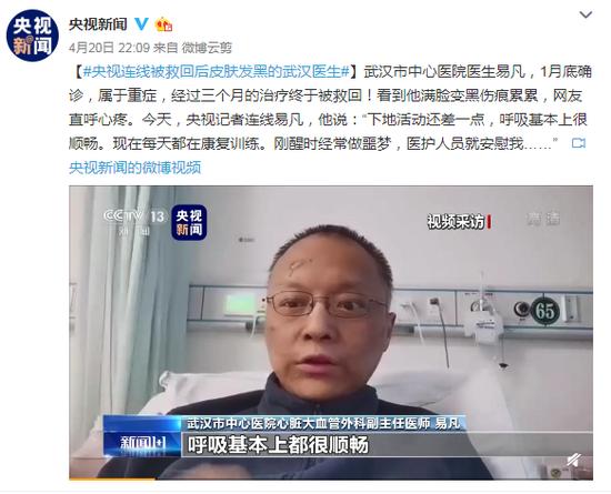 央视连线被救回后皮肤发黑的武汉医生图片
