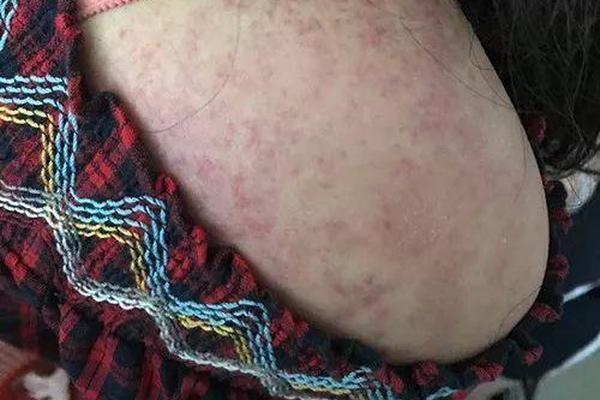 菲律宾宿务市监狱新增20人确诊感染新冠肺炎 累计确诊147人