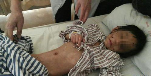 年仅5岁小肖满身伤痕躺在病床上,原本伶俐可爱的模样此刻却是骨瘦如柴。