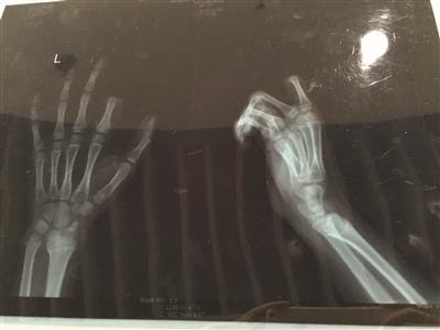 X光片显示孩子食指两个指节被切断。