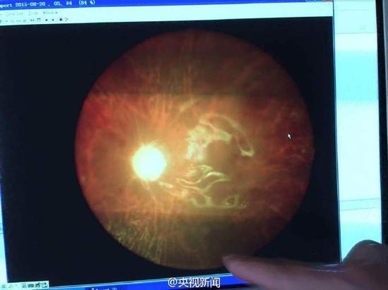 视网膜手术照片