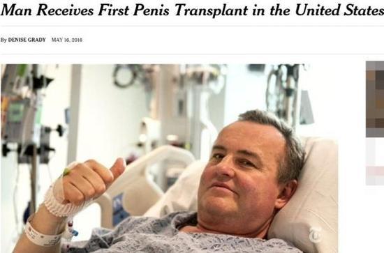 美完成首例阴茎移植手术 64岁男子重振雄风