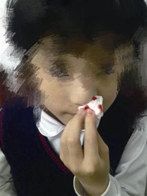 学生出现流鼻血 家长供图
