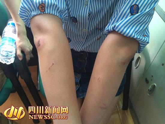 受害女孩双臂多处受伤