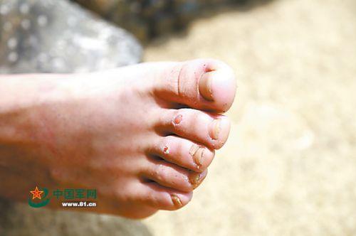 因为永劫刻衣着不透气的排雷鞋功课,许多胡匪的脚都被磨烂。