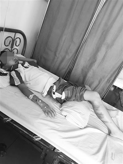 小雷在医院接受治疗