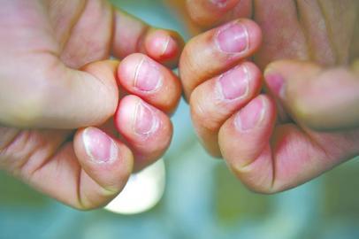 一天常常要工作十几个小时,邓美的手上磨出了老茧。
