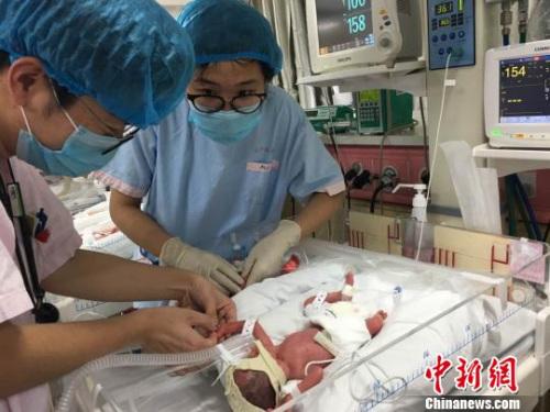 资料图。上海复旦大学附属妇产科医院(红房子医院)8日披露,该院刚刚成功接生了同卵四胞胎,四名女婴和她们的妈妈母女均安。