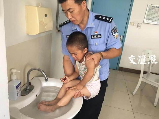 3岁男童脚底被烫伤