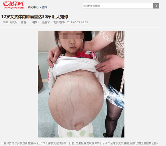 但是通过搜索发现,其实这张照片配图出自2014年7月的一则女孩患肿瘤的报道。