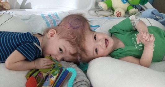 外国父母掷数千万求医 1岁多连头婴成功分离