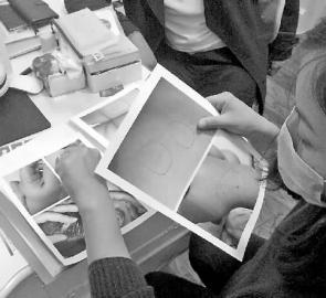 家长展示孩子受伤部位的相片