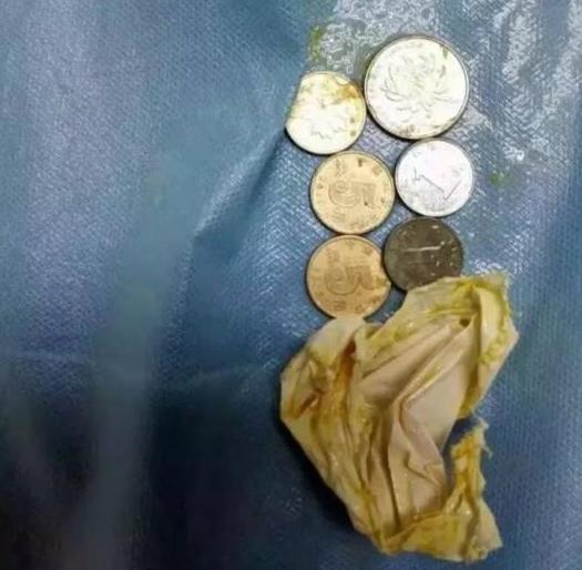 14岁男孩吞下6枚硬币 或是因赌气想以此吓唬父母
