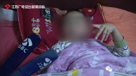 7岁男孩大腿被同学坐断