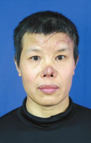 黄春娥老师鼻部美观及面部瘢痕问题