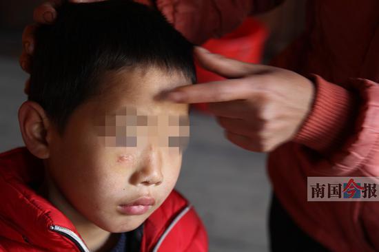 小旺右眼下侧和鼻梁处的疤痕已经结痂,不过家人很担忧。