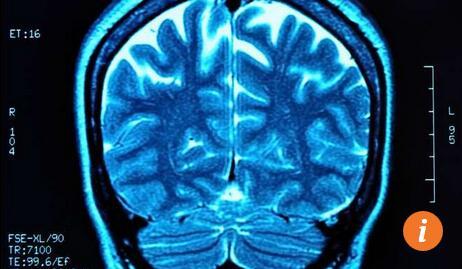 脑部扫描图