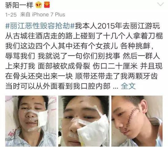 2017年1月25日,@骄阳一样爆料,在丽江旅游被打毁容,并贴出多张受伤图片。
