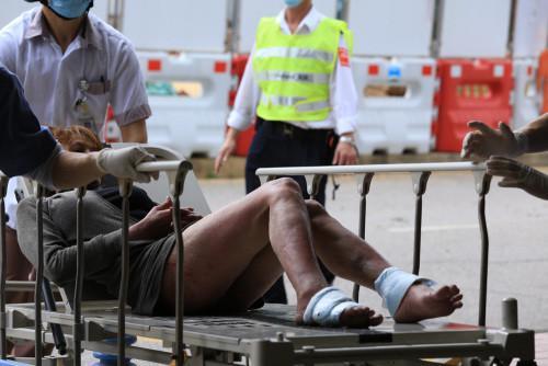 图:获救女子送院时清醒,脚部多处擦伤。来源:香港《大公报》