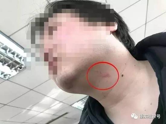 ▲ 被打的新京报记者,脖颈处有明显伤痕。