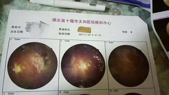 赵强(化名)于2017年做的眼科检查报告