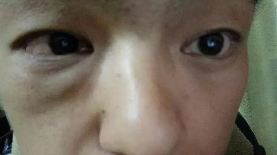 赵强(化名)右眼只有微弱的光感
