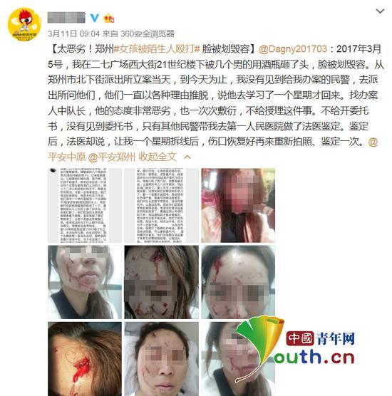 郑州女孩在大排档遭数名男子毁容 警方