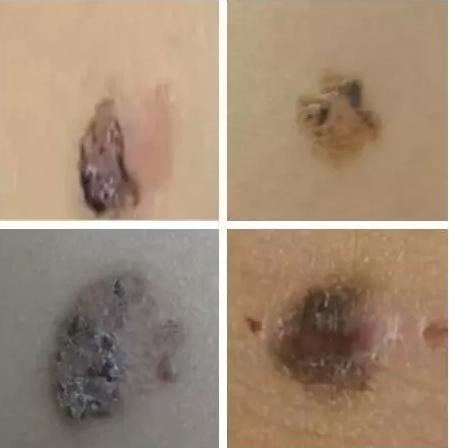 基底细胞癌可能表现为一颗痣、一片斑