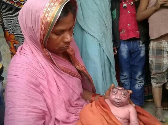 印度无脑巨眼怪婴 竟被当地人奉若神明