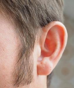 5岁男童耳内藏西瓜子住院治疗 系抠痒不慎滑入
