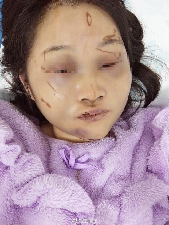 小余微博上贴出的自己受伤时的照片