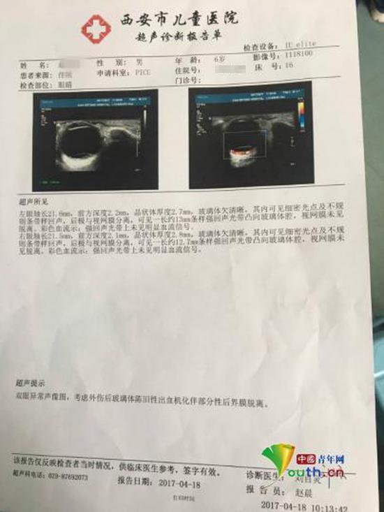 被虐待男童鹏鹏四月份医院超声诊断报告单。  @呼唤鹏鹏 图