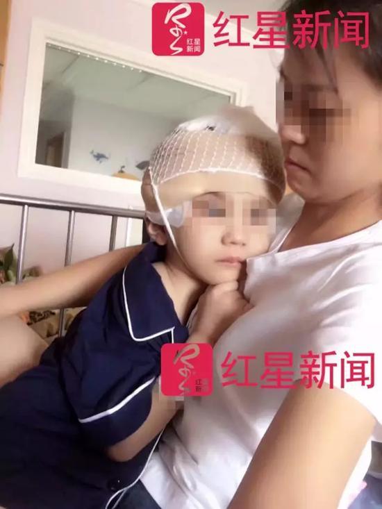 手术后,鹏鹏紧紧抱着妈妈。 本文图片均为受访者供图