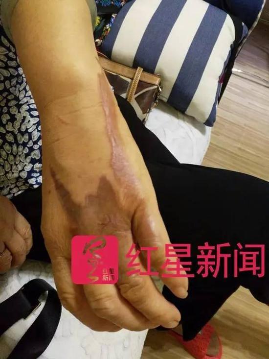费建勤称,母亲听说她的事情后不小心把手烫伤了 图片来源:红星新闻