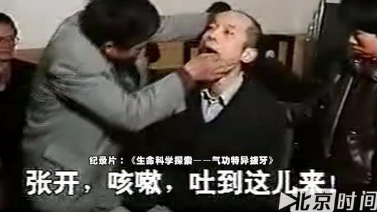(纪录片中周德荣为葛优拔牙)
