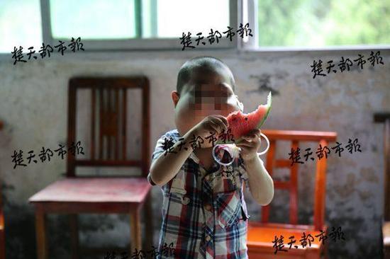 5岁男孩患怪病:脸部肿胀似河马 无法呼吸进食