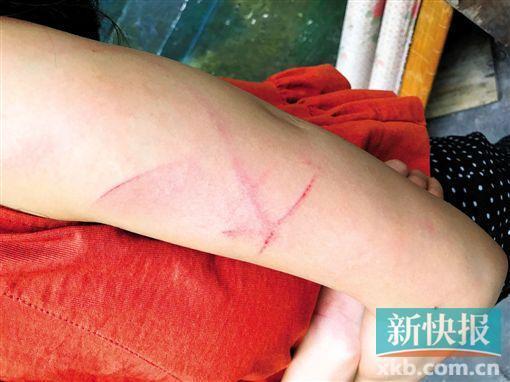 阿雯手臂上的伤痕清晰可见。受访者供图